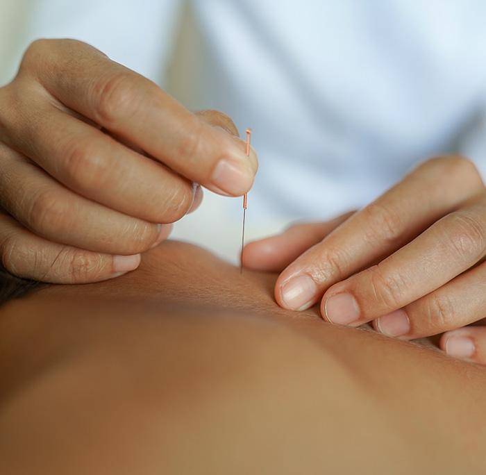 Massief Kinesitherapie Dry Needling